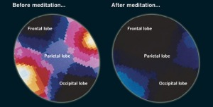 Hjernen før og etter meditasjon